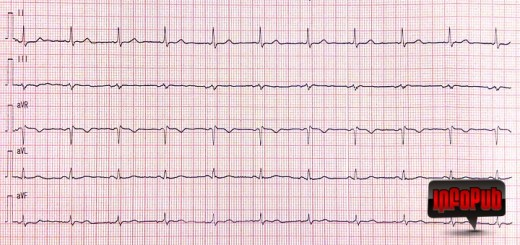 Electrocardiograma si evitarea erorilor de inregistrare