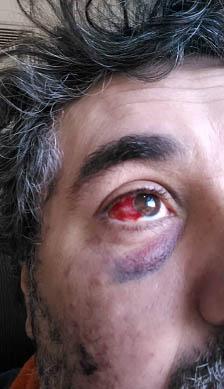 ojo-Osvaldo Villares