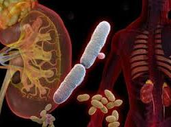 Urinary tract infection in nigeria