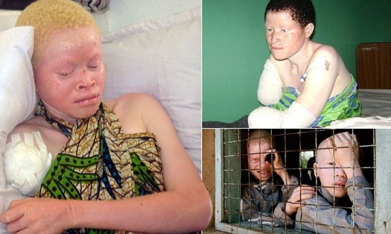 Tanzanias Albinos Hunted Down Like Animals And Sold By