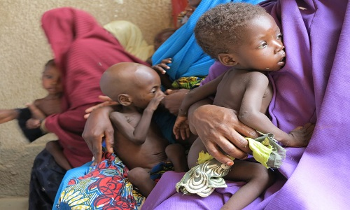 malnourished kids