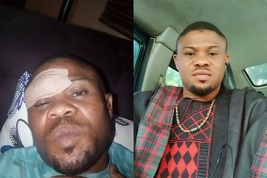 Yoruba actor Ayanfe Adekunle survives ghastly car crash