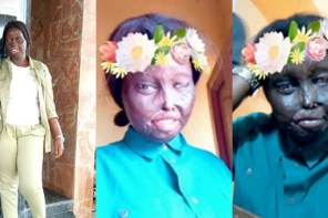 """The Love I've For Myself Brought Me This Far"" – Nigerian Burn Survivor"