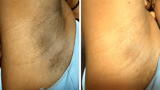 Get Rid Of Dark Underarms Without Stress