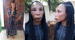 'My sister's boyfriend beat her up and used his firearm on her' – Twitter user laments