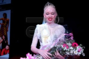 Zimbabwe Crowns First 'Miss Albino' (Photos)