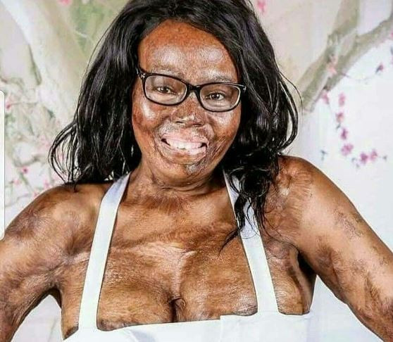 Wow! Read the incredible story of this burn survivor