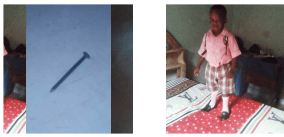 Capture 47 - Nigerian mom reveals how her on survived after swallowing a nail
