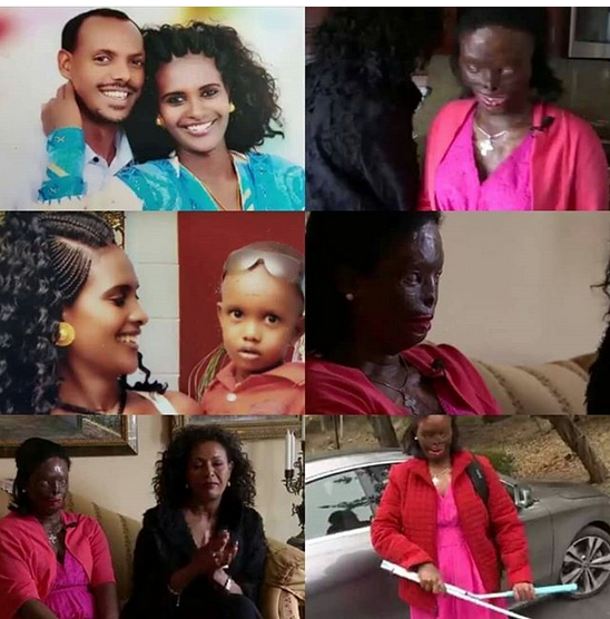 ethiopian woman disfigured - Woman Bath With Acid After Asked For Divorce From Husband