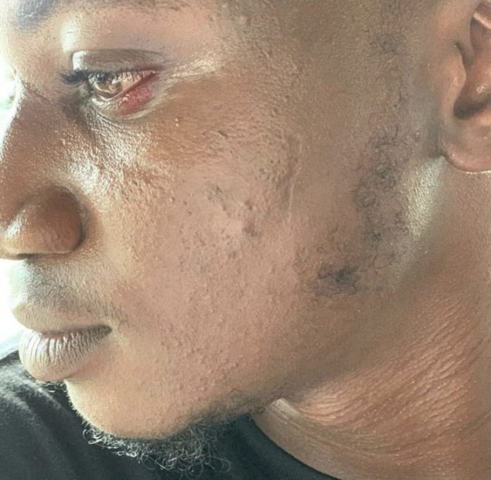 Pamilerin speaks on next line of action after the slap episode with Peruzzi