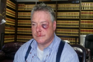 This March 9, 2016 photo provided by Jerry L. Steering shows Defense attorney James Crawford at his attorney's office in Newport Beach, Calif. Crawford an Orange County defense attorney who suffered a bloodied face after a brawl with a district attorney's investigator in a Santa Ana courthouse hallway. Crawford was speaking with a witness in the courthouse Wednesday, March 9, when an investigator he did not know interrupted his conversation and called defense lawyers sleazy, said Jerry Steering, Crawford's lawyer. (Jerry L. Steering via AP)