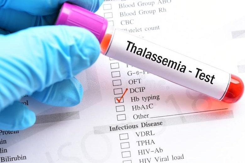 Diagnosis of Thalassemia