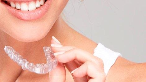 Ortodoncia invisible en Clínica Peydro/Img. web