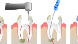 Endodoncias infectadas