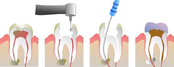 Endodoncias infectadas