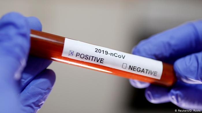 Test CPR de coronaviru/archivos