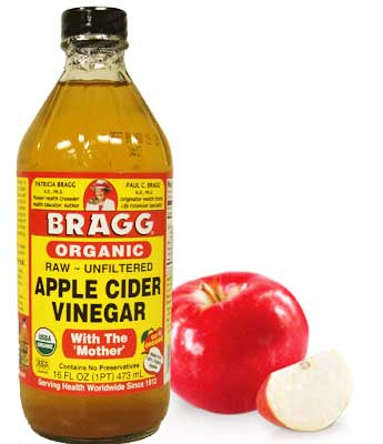 cuka epal bunuh bakteria jerawat