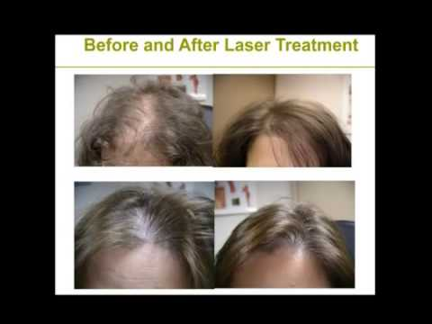 exercises for hair growth red light therapy