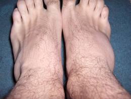 picioarele umflate și genunchii dureroși de ce fundul picioarelor mele este umflat dimineața