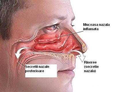 simptome de rinită pathology of papillomatosis