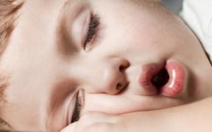 copil cu polipi