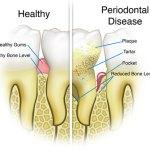 parodontita