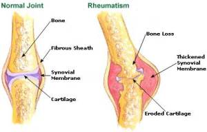 rheumatism-picture