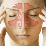 cara mengurangi gejala sinus