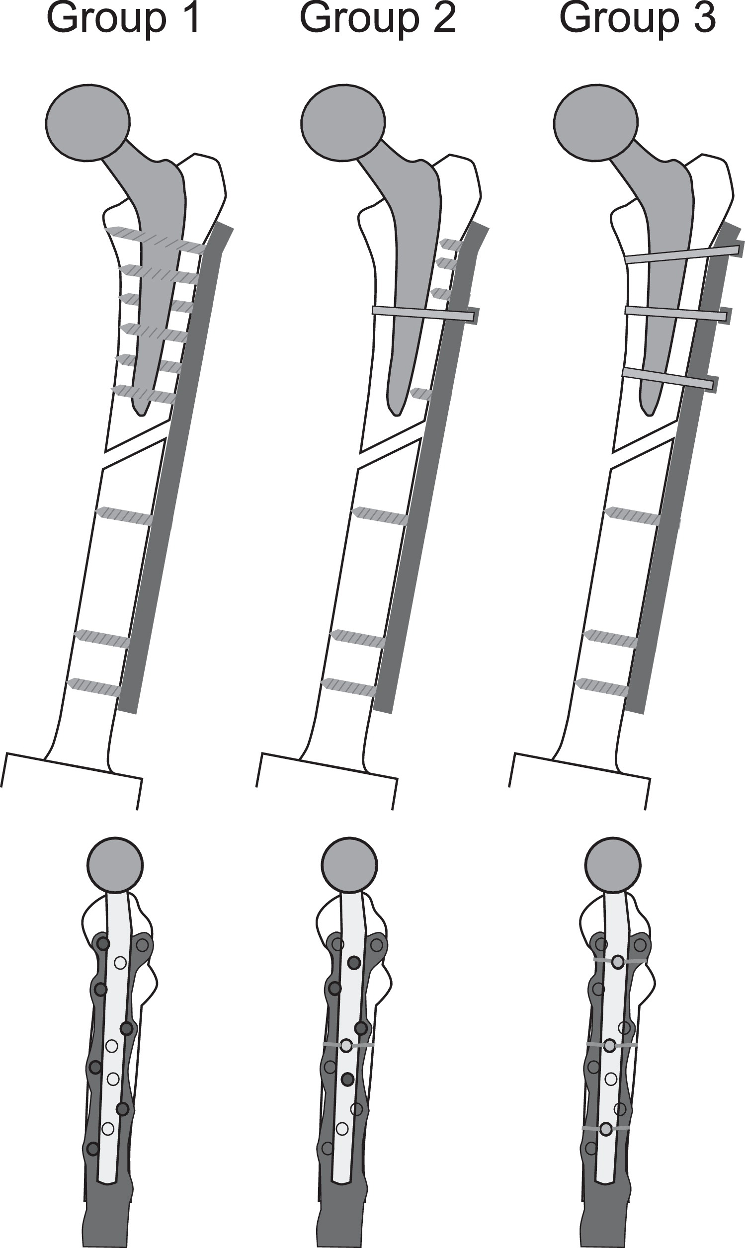 Biomechanical Evaluation Of Fracture Fixation Constructs