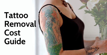 How Much Does Tattoo Removal Cost