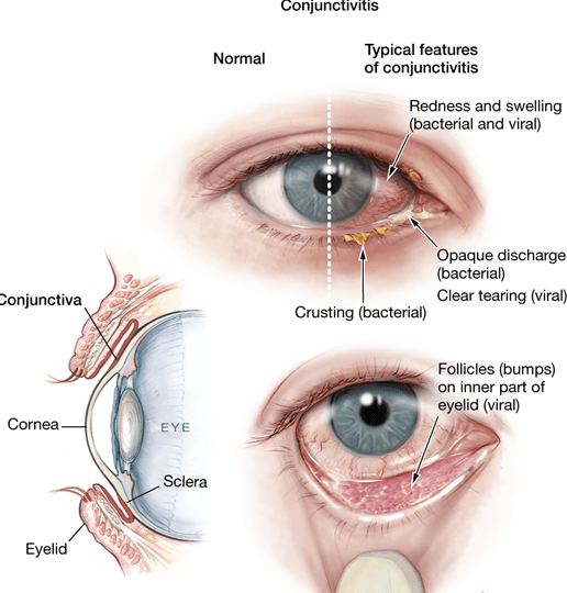 Home Remedies for Common Eye Diseases and Disorders