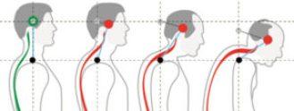head forward posture defects
