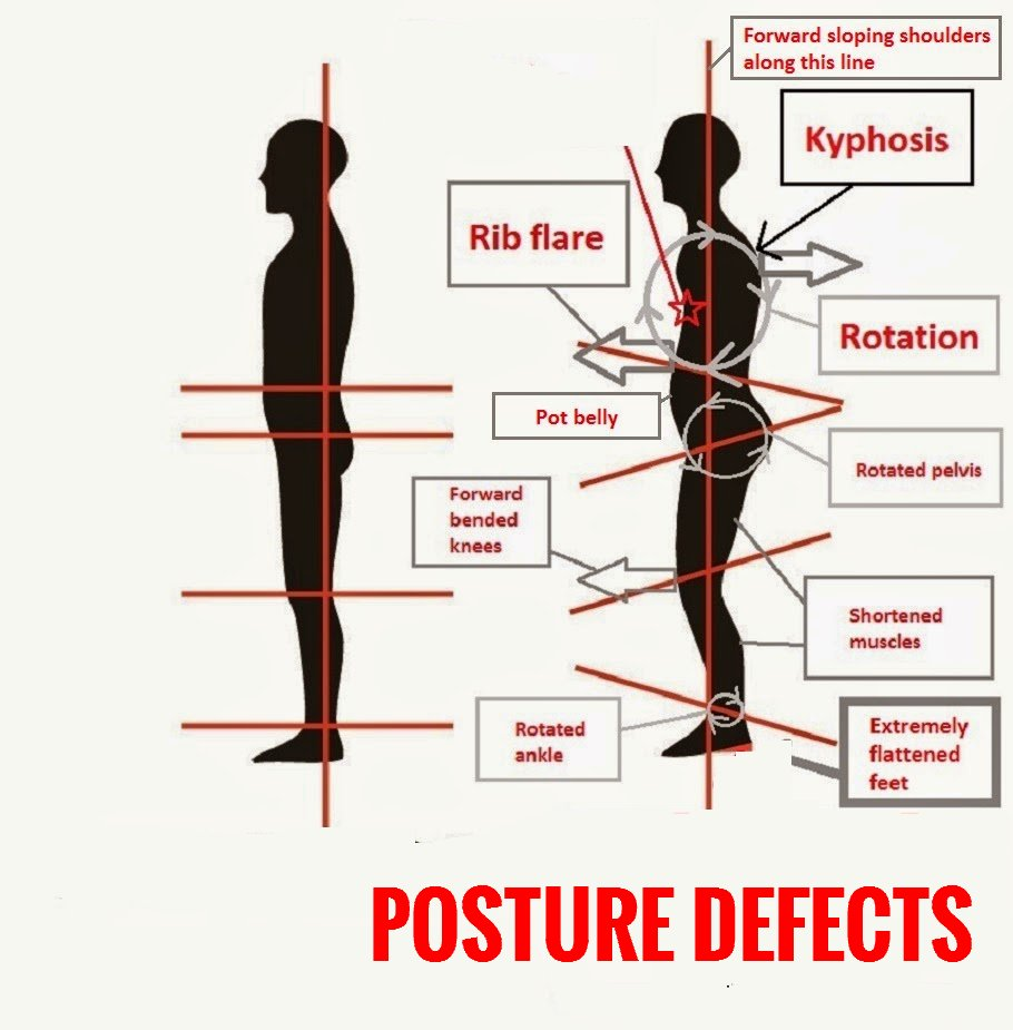 Posture Correction Yoga Poses