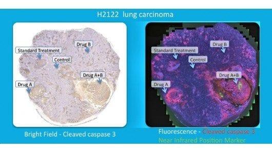 in-tumor-multiple-cancer-drug-test-presage