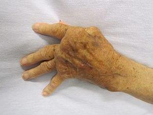 300px-Rheumatoid_Arthritis