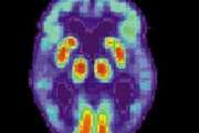 Johns Hopkins Surgeons Implant Brain