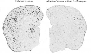 Alzheimer's Disease in Mice Alleviated Promising Therapeutic Approach for Humans