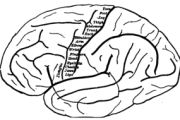 Neural Interface for Hand Prosthesis Can Restore Function in Brain Areas Responsible for Motor Control