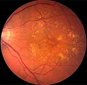 Cholesterol buildup links atherosclerosis and macular degeneration