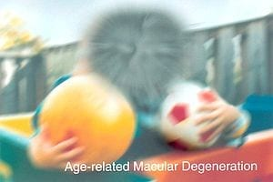 Major Breakthrough in Macular Degeneration