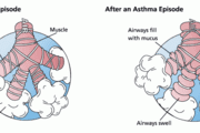 A promising target to treat asthma