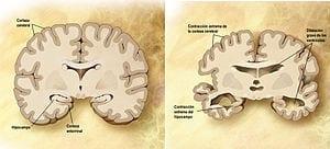 Cerebro_corte_frontal_Alzheimer (1)