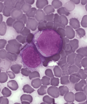 Leukemia_cells
