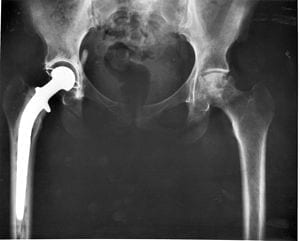 Hip_replacement_Image_3684-PH