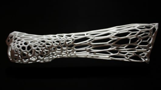 3D-printed Cortex concept scratches the itch of healing broken bones
