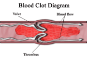 Toward a urine test for detecting blood clots