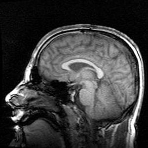 300px-Mri_brain_side_view