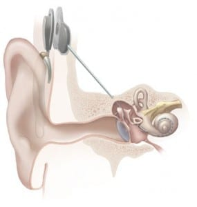 Cochlear_implant-285x300