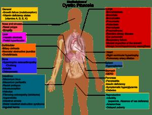 Cystic_fibrosis_manifestations