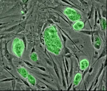 Mouse embryonic stem cells. More lab photos (Photo credit: Wikipedia)